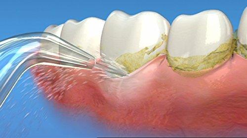 Waterpik 洁碧 WP-660 标准型冲牙器/水牙线 85.07-86.39加元包邮!2色可选!
