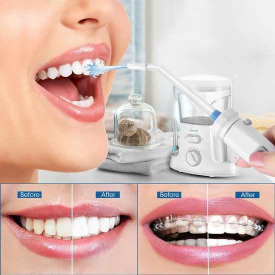 Homitt HTWF01 专业电动冲牙器/水牙线 5.8折 38.99加元,原价 66.99加元,包邮